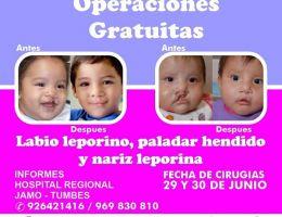 Operarán gratis a 20 niños con labio leporino y paladar hendido en el Hospital Regional JAMO de Tumbes
